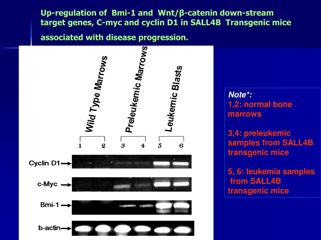 Up-regulation of  Bmi-1 and  Wnt/β-catenin down-stream target genes, C-myc and cyclin D1 in SALL4B  Transgenic mice associated with disease progression.