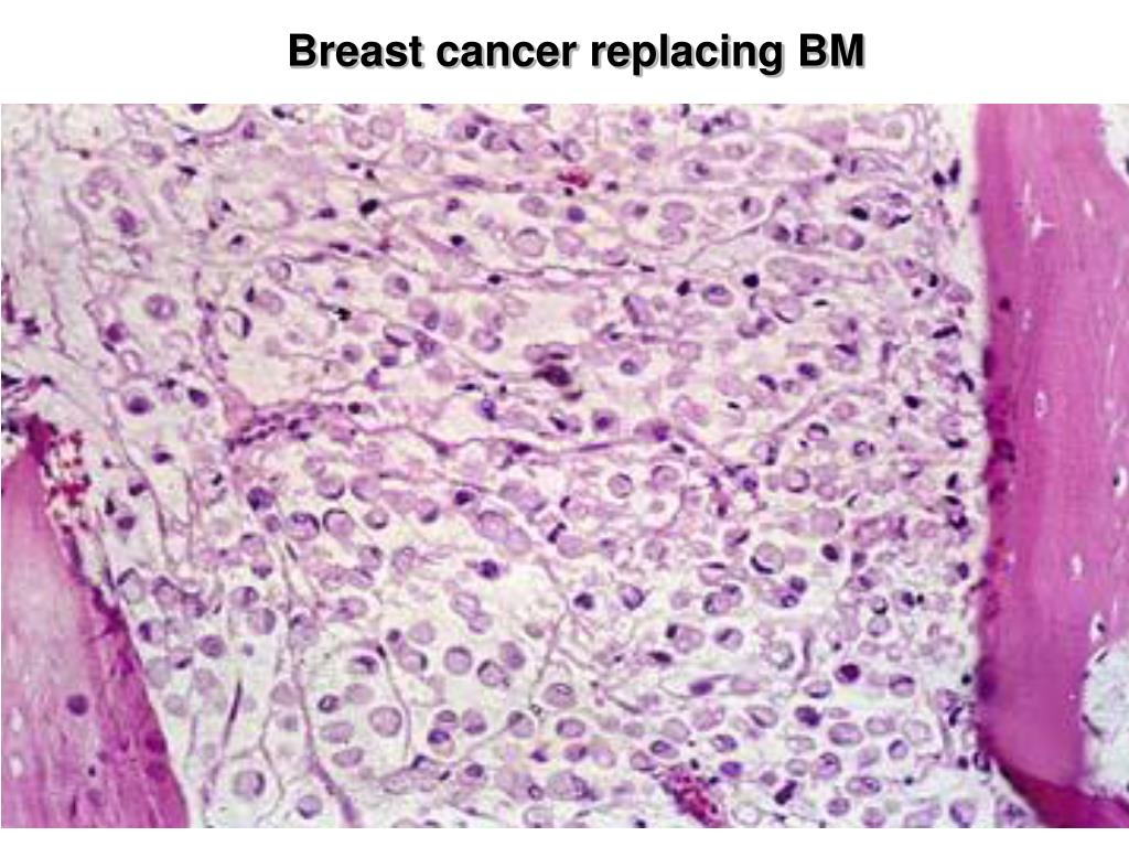 Breast cancer replacing BM