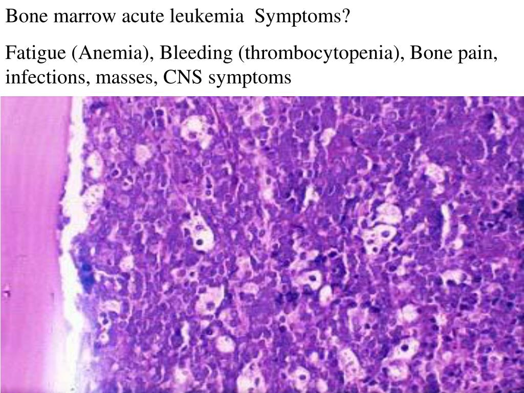 Bone marrow acute leukemia  Symptoms?