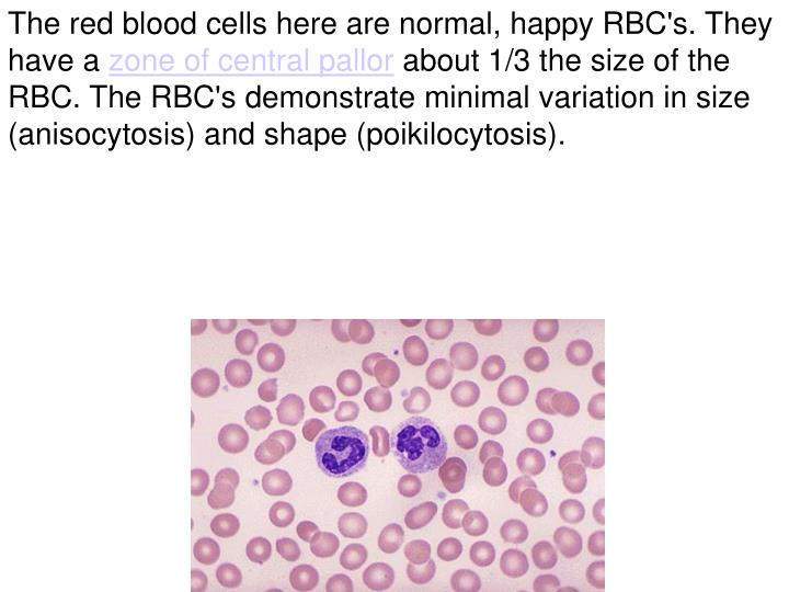 The red blood cells here are normal, happy RBC's. They have a