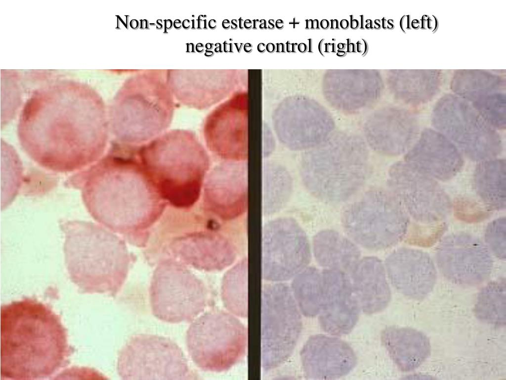 Non-specific esterase + monoblasts (left)