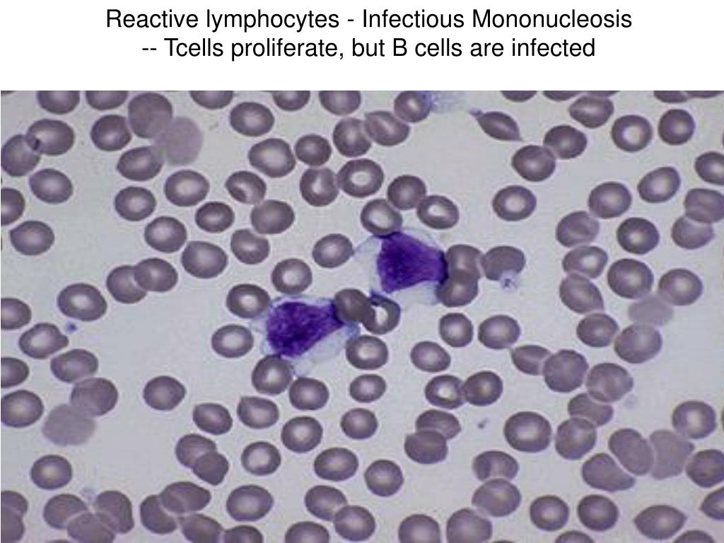 Reactive lymphocytes - Infectious Mononucleosis -- Tcells proliferate, but B cells are infected