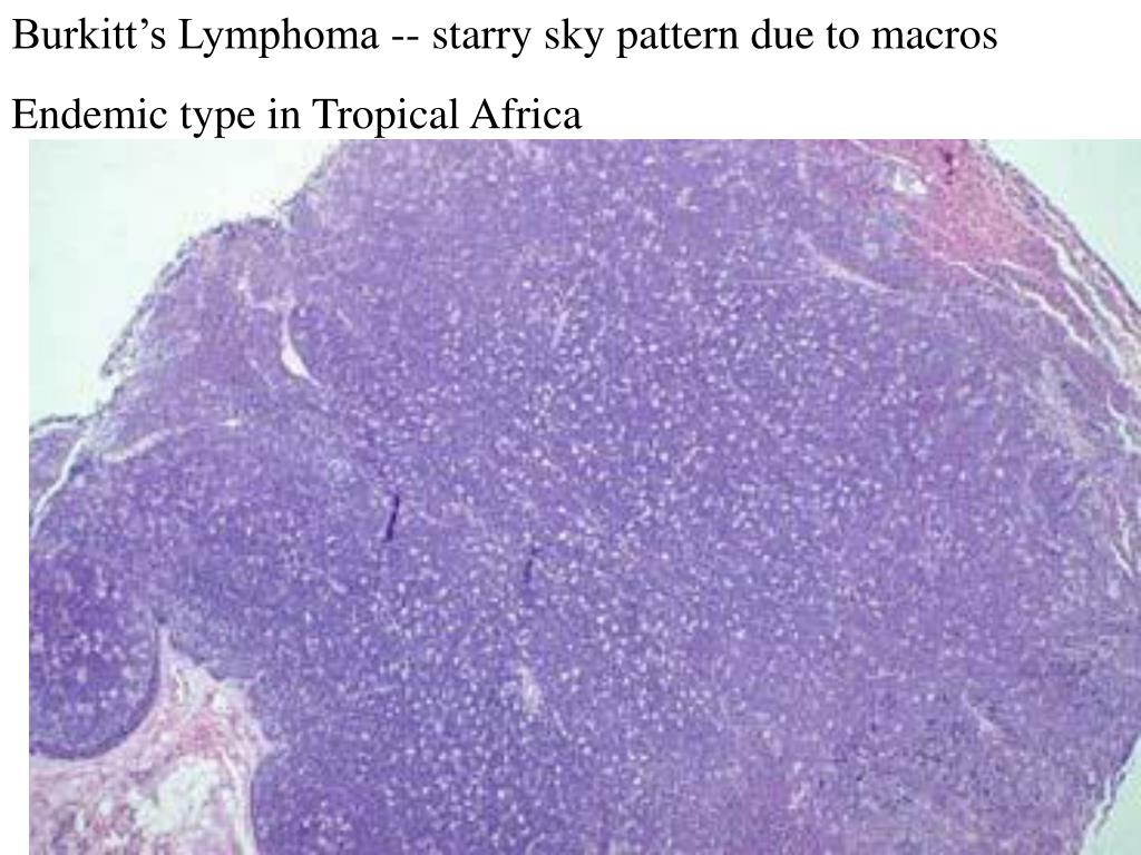 Burkitt's Lymphoma -- starry sky pattern due to macros