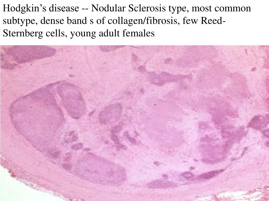 Hodgkin's disease -- Nodular Sclerosis type, most common subtype, dense band s of collagen/fibrosis, few Reed-Sternberg cells, young adult females