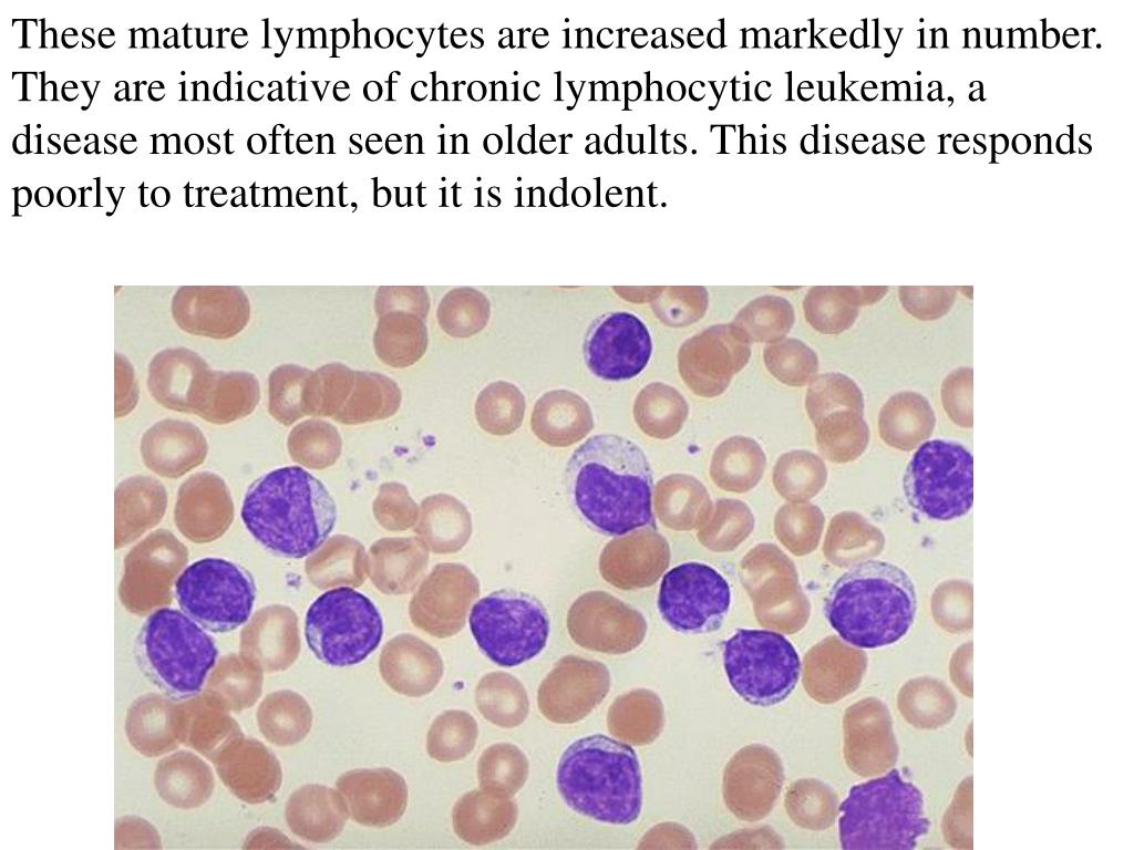 These mature lymphocytes are increased markedly in number. They are indicative of chronic lymphocytic leukemia, a disease most often seen in older adults. This disease responds poorly to treatment, but it is indolent.