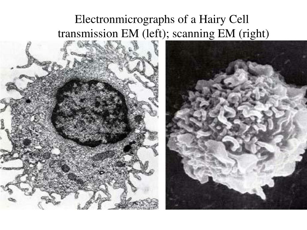 Electronmicrographs of a Hairy Cell