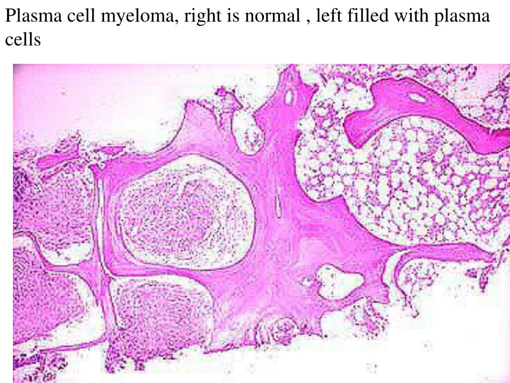Plasma cell myeloma, right is normal , left filled with plasma cells