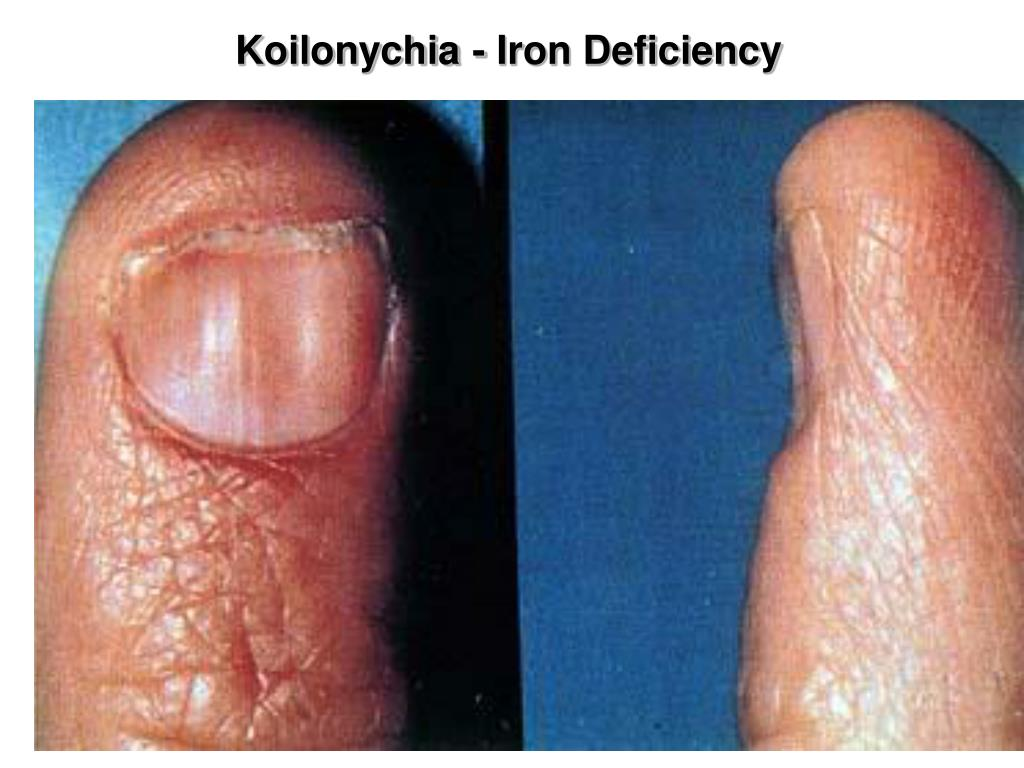 Koilonychia - Iron Deficiency