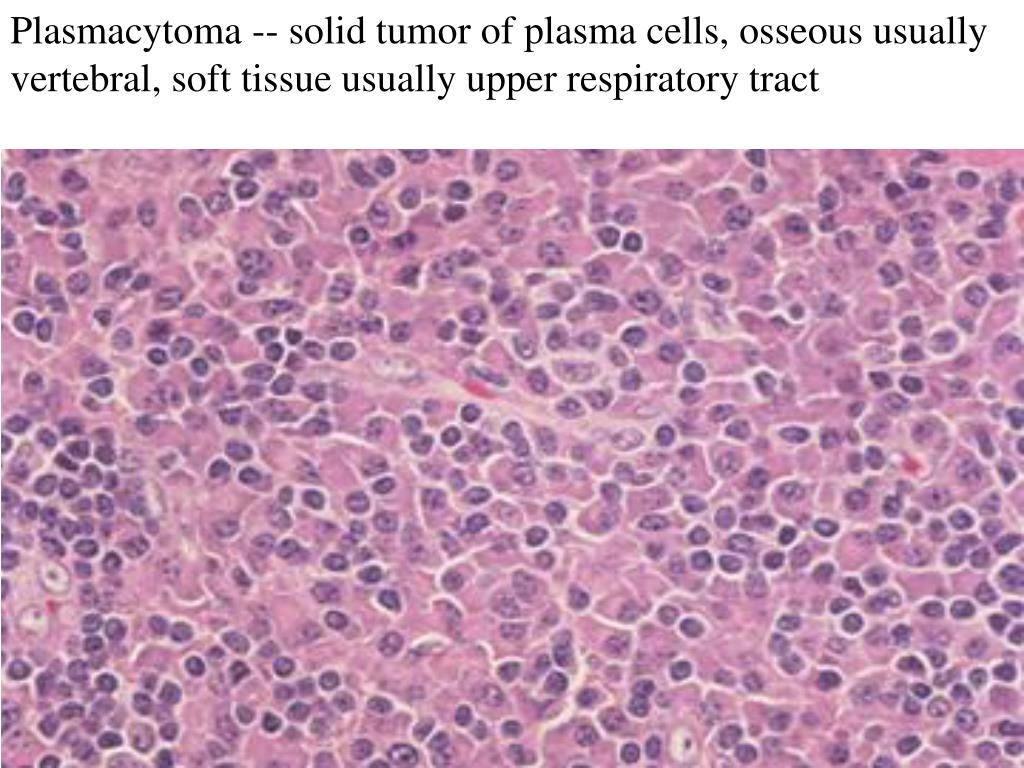 Plasmacytoma -- solid tumor of plasma cells, osseous usually vertebral, soft tissue usually upper respiratory tract