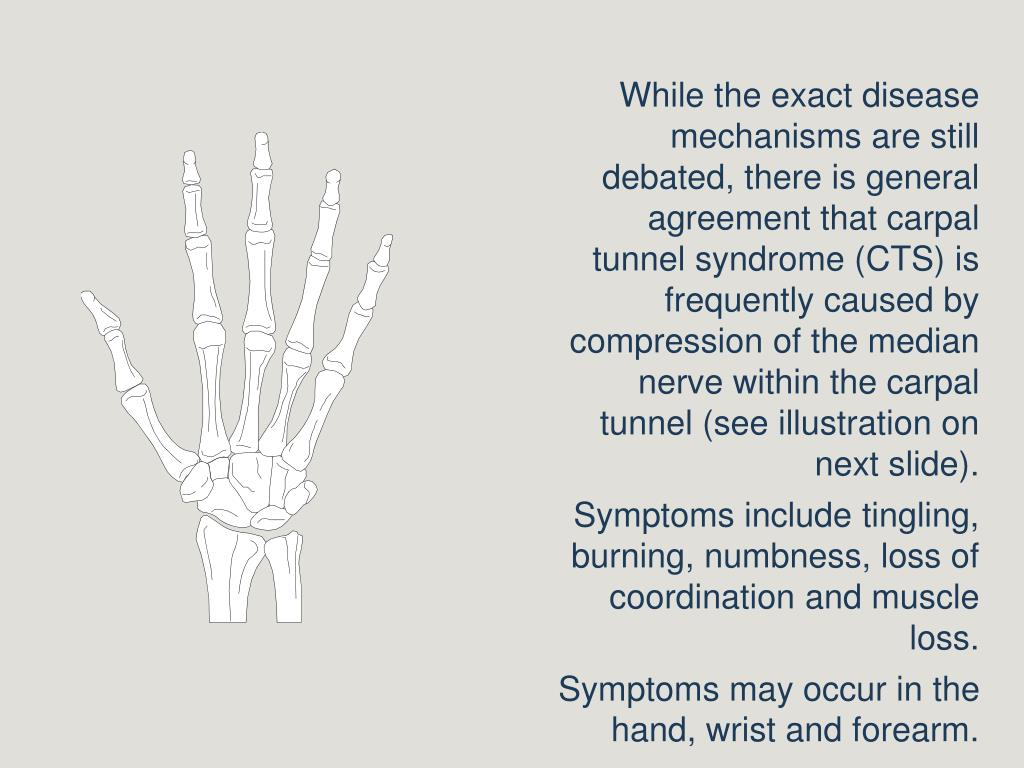 While the exact disease mechanisms are still debated, there is general agreement that carpal tunnel syndrome (CTS) is frequently caused by compression of the median nerve within the carpal tunnel (see illustration on next slide).