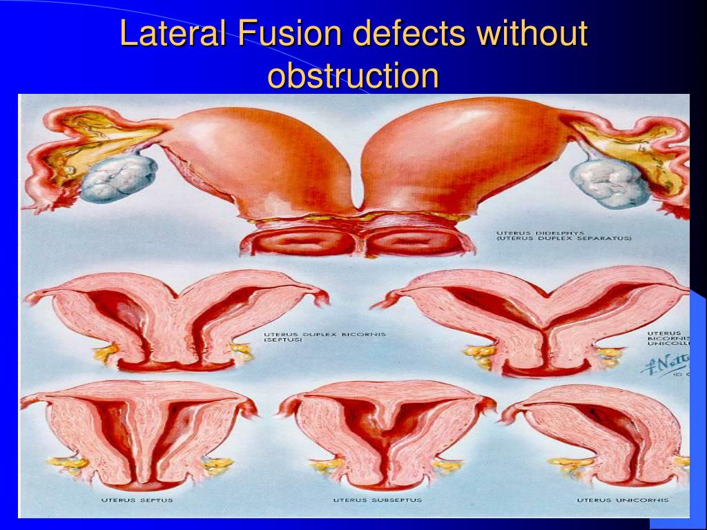 Lateral Fusion defects without obstruction