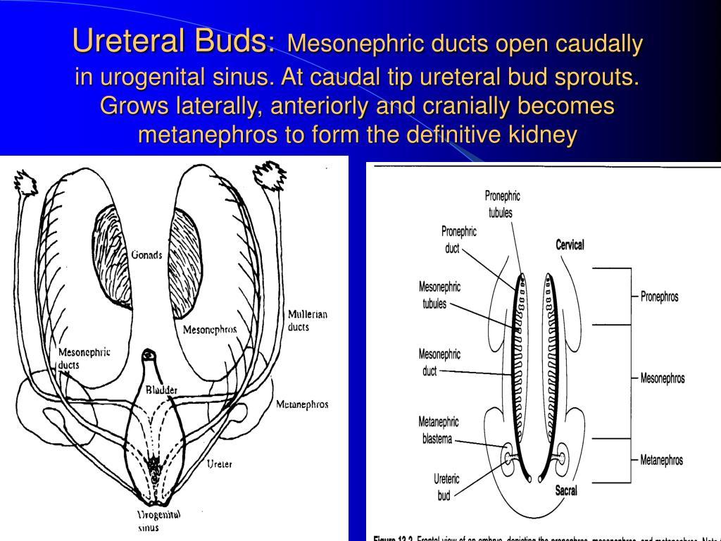 Ureteral Buds
