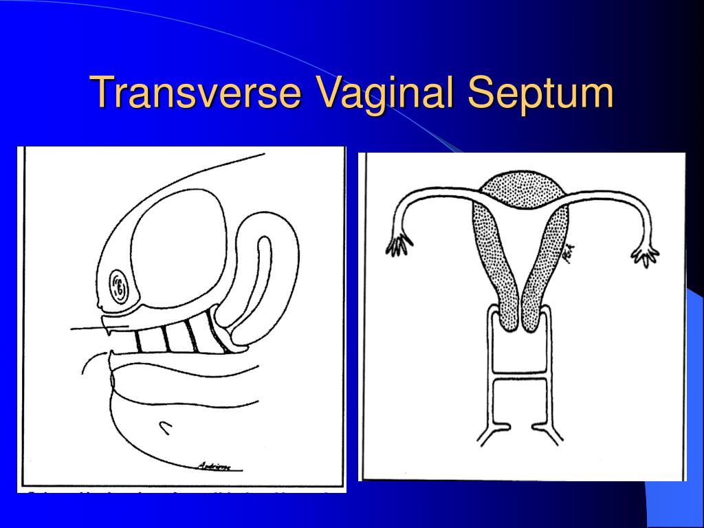 Transverse Vaginal Septum