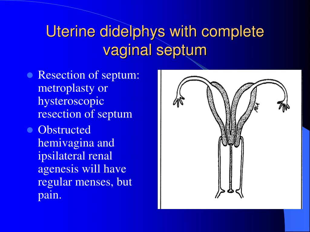 Resection of septum: metroplasty or hysteroscopic resection of septum