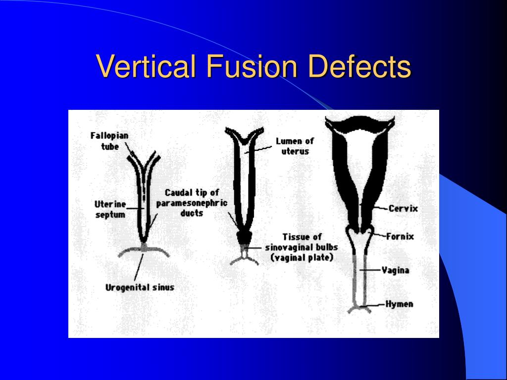 Vertical Fusion Defects
