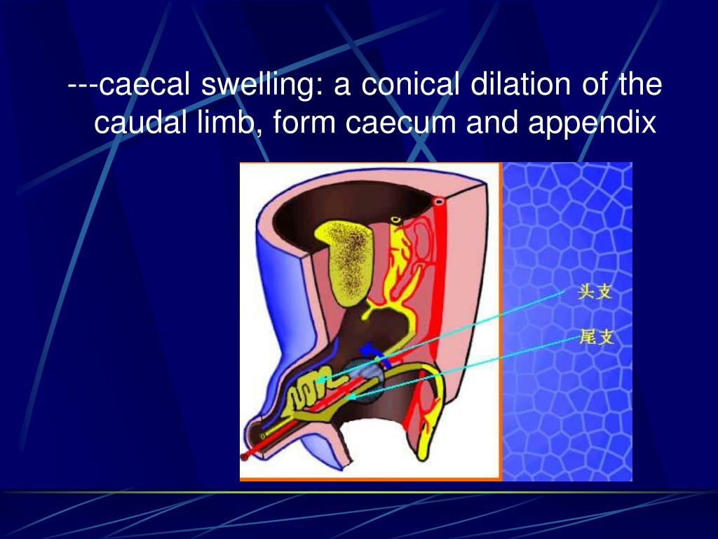 ---caecal swelling: a conical dilation of the caudal limb, form caecum and appendix