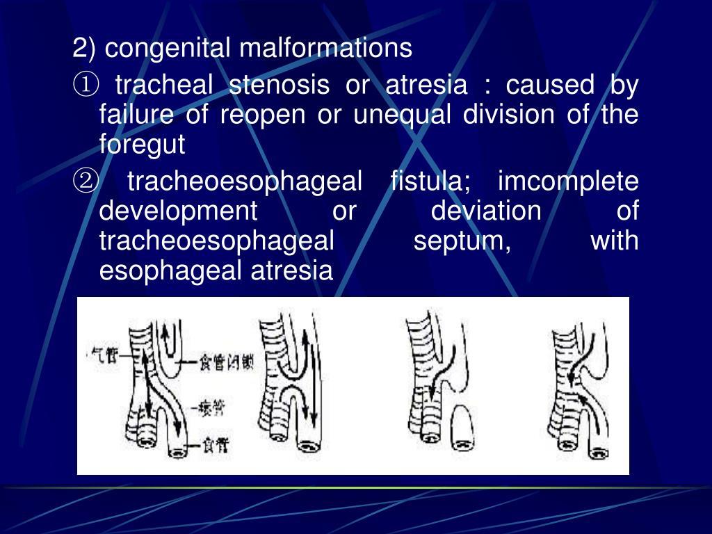 2) congenital malformations