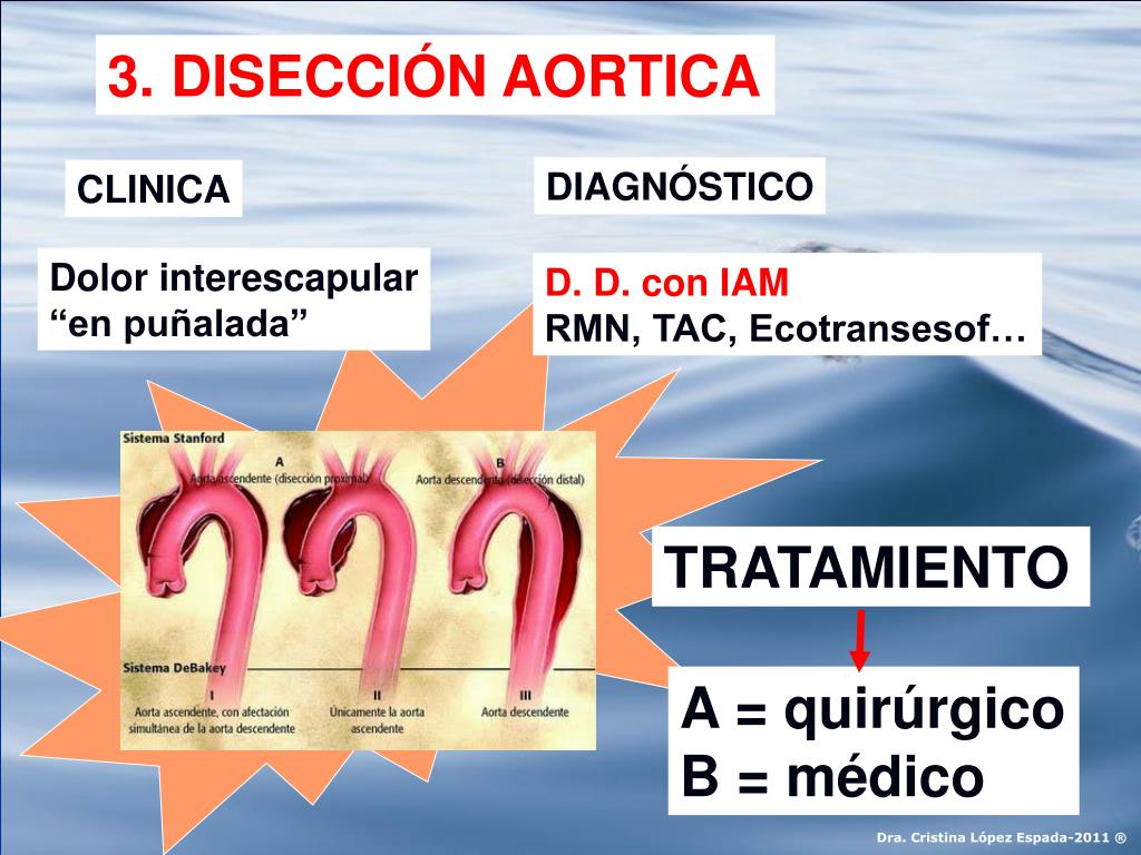 3. DISECCIÓN AORTICA