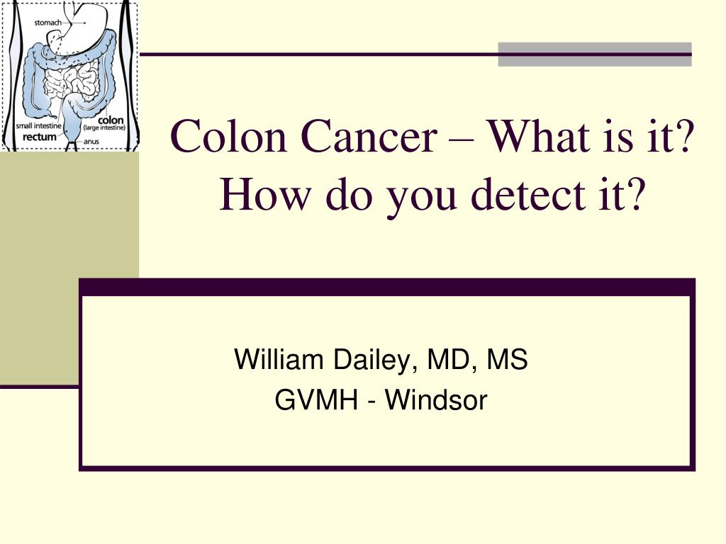 colon cancer what is it how do you detect it l.