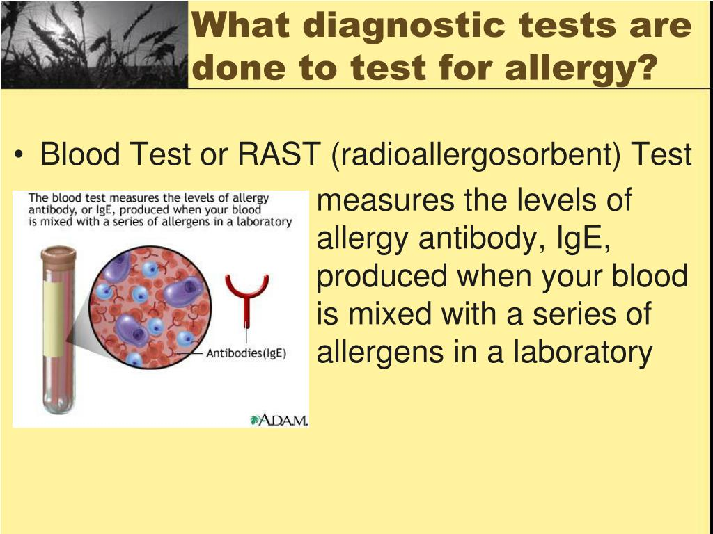 What diagnostic tests are done to test for allergy?