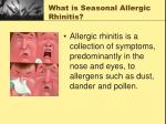 what is seasonal allergic rhinitis