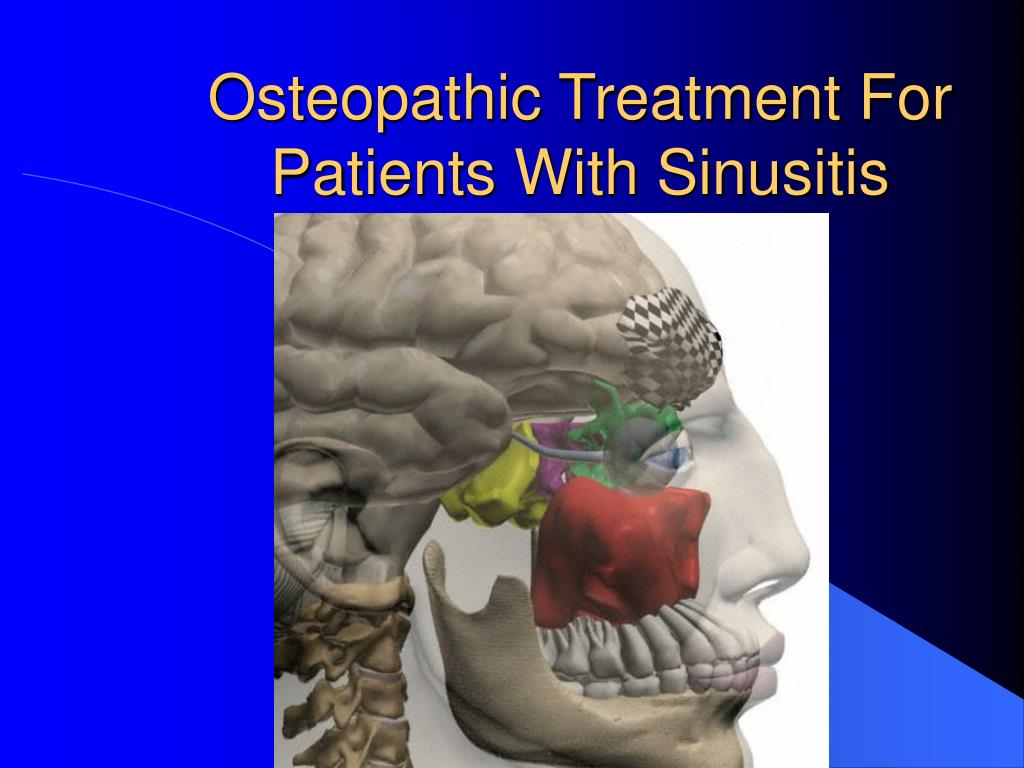 osteopathic treatment for patients with sinusitis l.