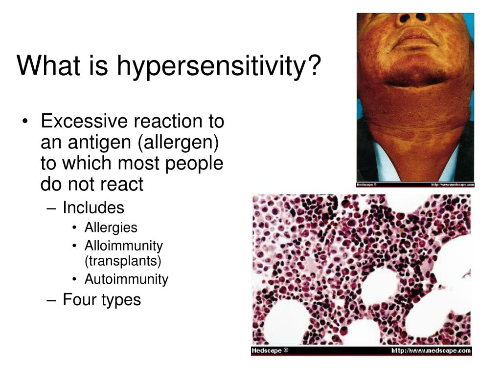 What is hypersensitivity?