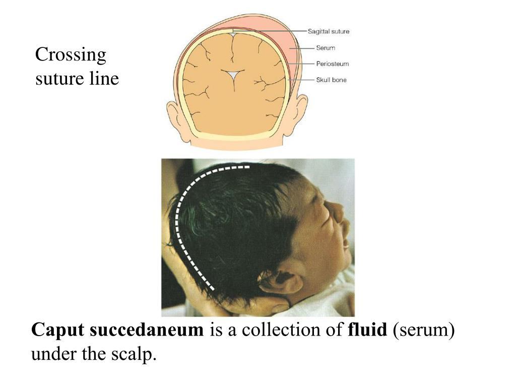 Crossing suture line
