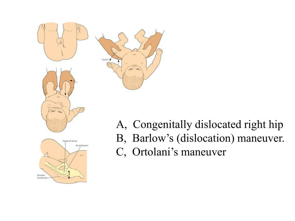 A,  Congenitally dislocated right hip                               B,  Barlow's (dislocation) maneuver.