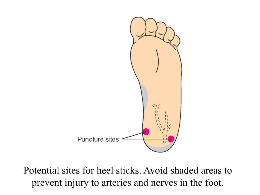 Potential sites for heel sticks. Avoid shaded areas to prevent injury to arteries and nerves in the foot.