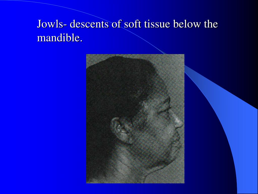 Jowls- descents of soft tissue below the mandible.