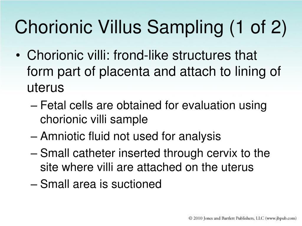 Chorionic Villus Sampling (1 of 2)