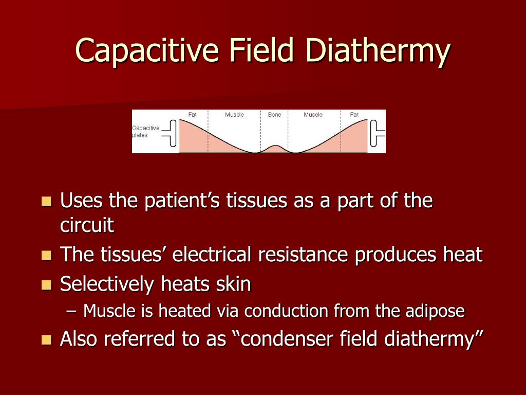 Capacitive Field Diathermy