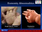 extremity abnormalities