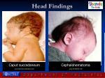 head findings