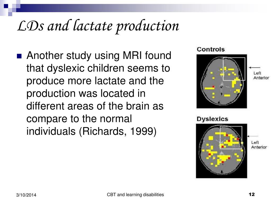 Another study using MRI found that dyslexic children seems to produce more lactate and the production was located in different areas of the brain as compare to the normal individuals (Richards, 1999)