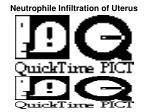 neutrophile infiltration of uterus