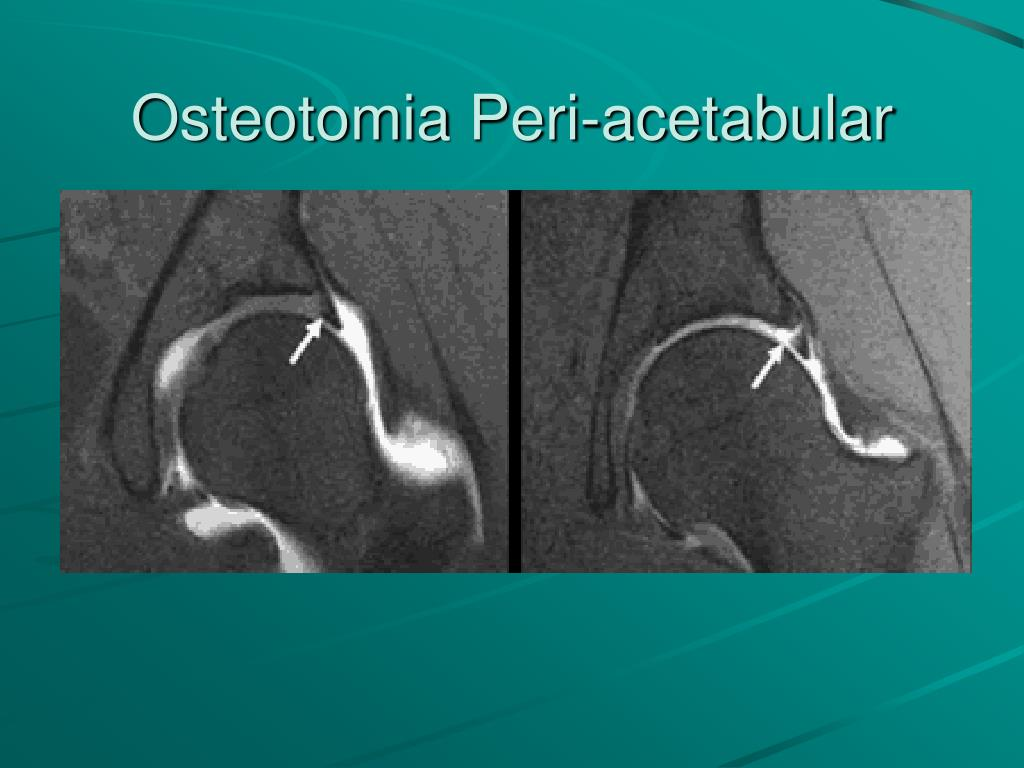Osteotomia Peri-acetabular