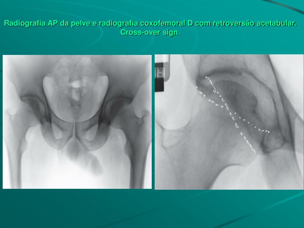 Radiografia AP da pelve e radiografia coxofemoral D com retroversão acetabular.