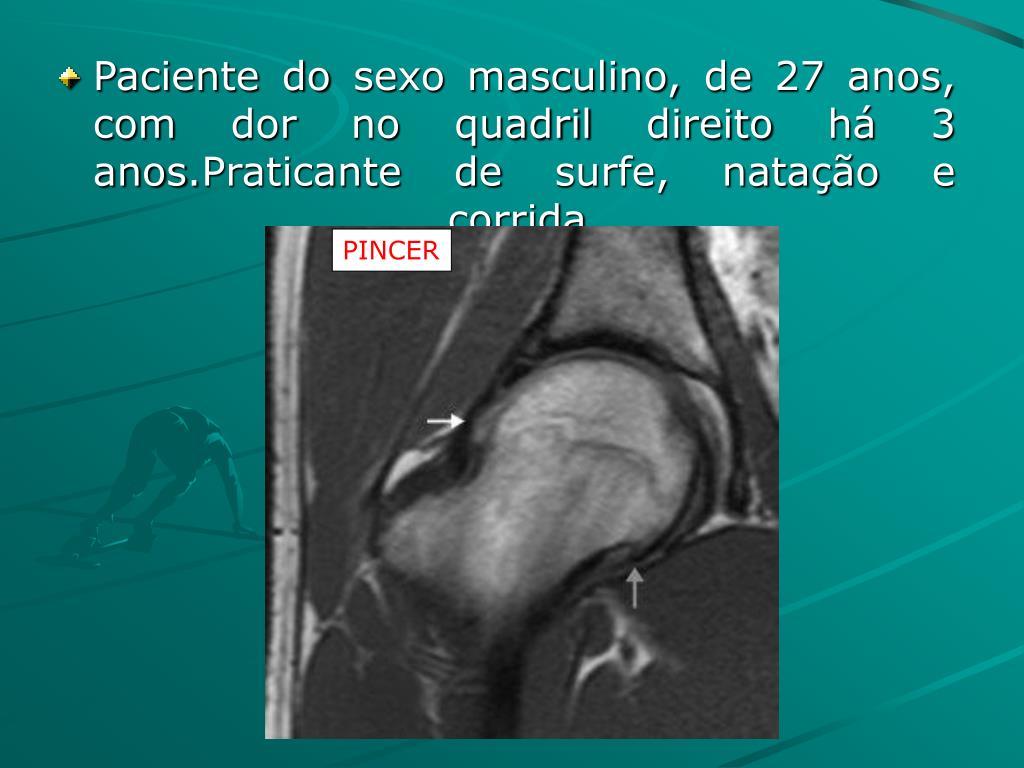 Paciente do sexo masculino, de 27 anos, com dor no quadril direito há 3 anos.Praticante de surfe, natação e corrida.