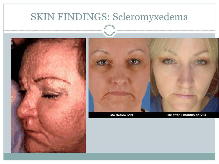 Ppt Scleromyxedema Powerpoint Presentation Id 676666