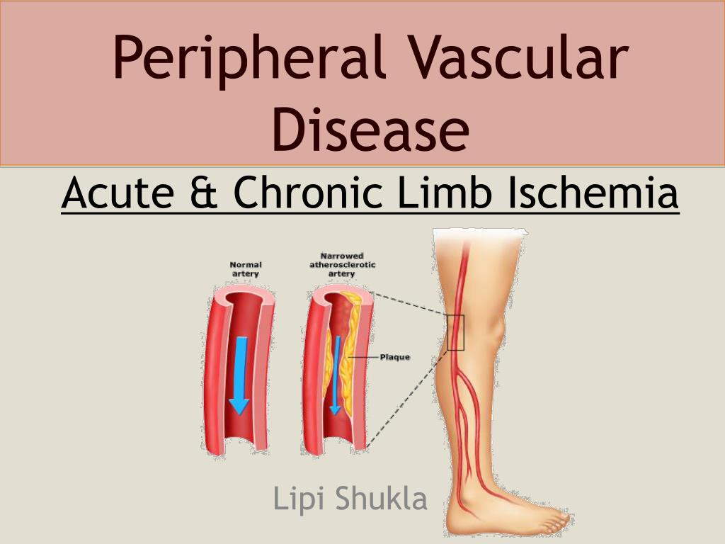 Peripheral arterial disease fact sheet|data & statistics|dhdsp|cdc.