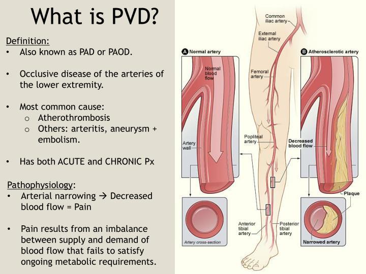 PPT - Peripheral Vascular Disease Acute & Chronic Limb ...