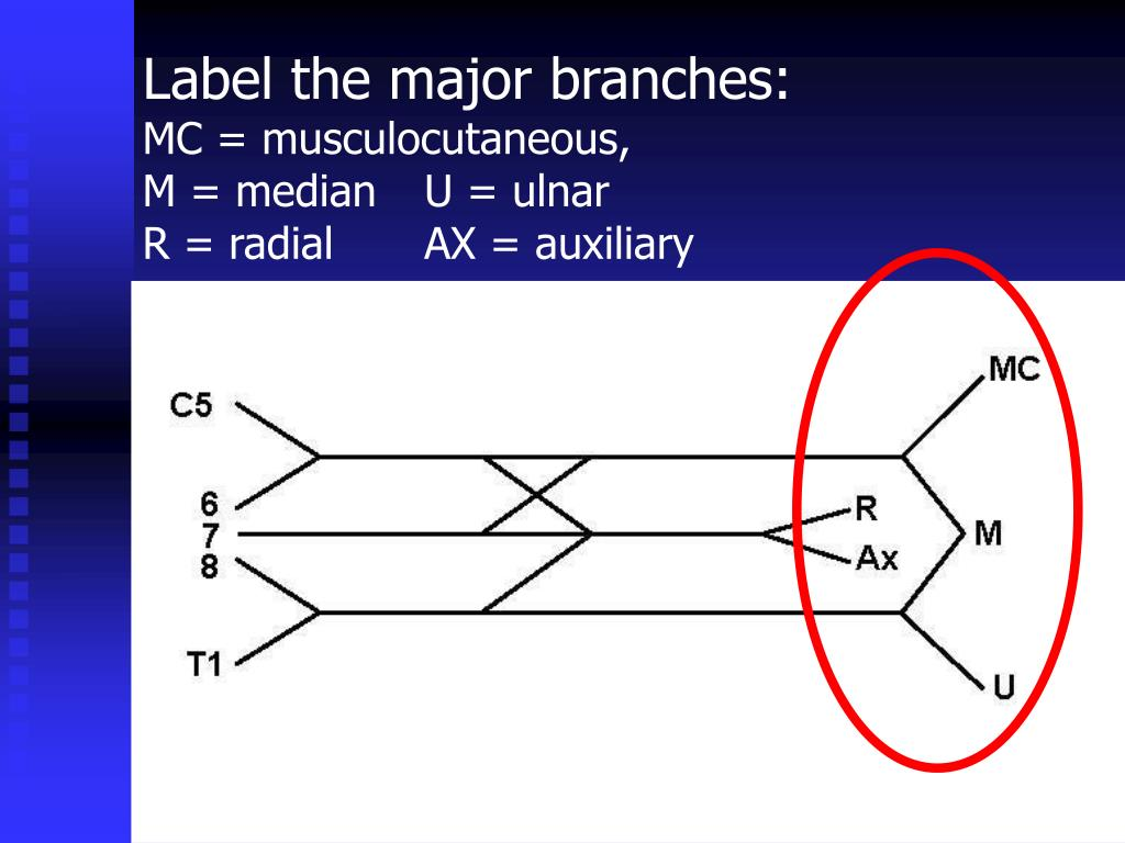 Label the major branches: