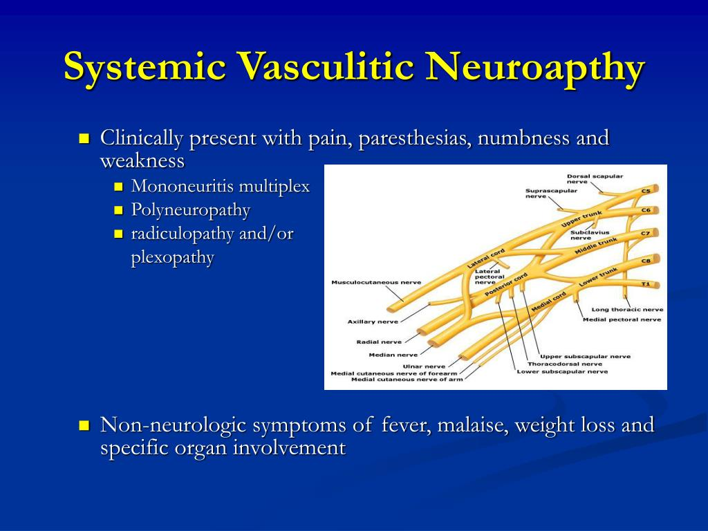 Systemic Vasculitic Neuroapthy