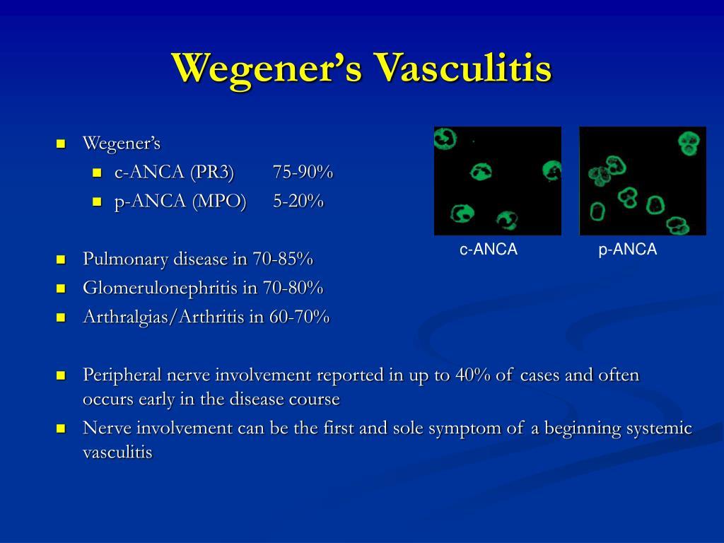 Wegener's Vasculitis