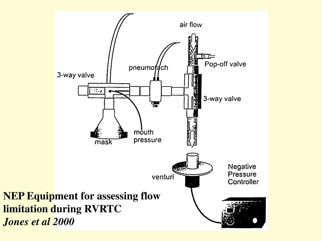 NEP Equipment for assessing flow