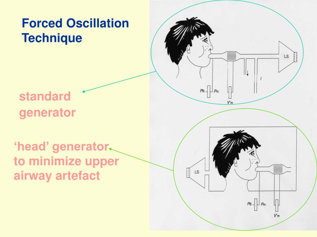 Forced Oscillation