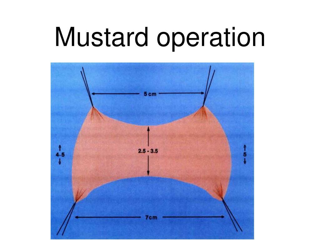 Mustard operation