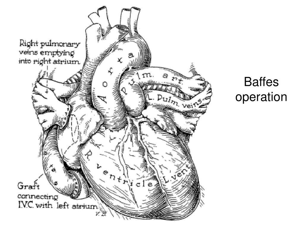 Baffes operation